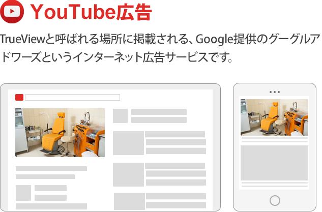YouYube広告の画面写真